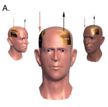 A-M1-C-contralateral-supraorbital
