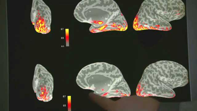 fMRI Showing Medial Temporal Lobe Activity